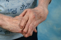 Dietary advice for people with Arthritis